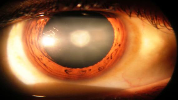 Mata dengan katarak